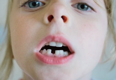 troca dentes 1